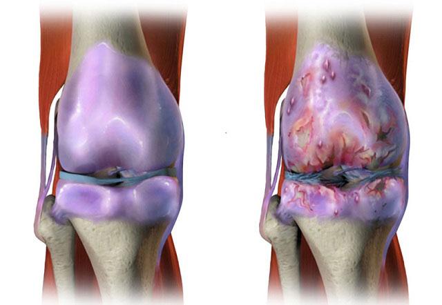 здоровый коленный сустав и пораженный гонартрозом